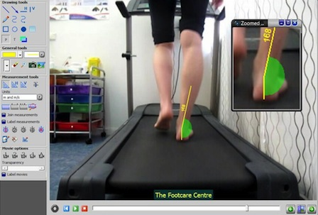 Video Gait Analysis